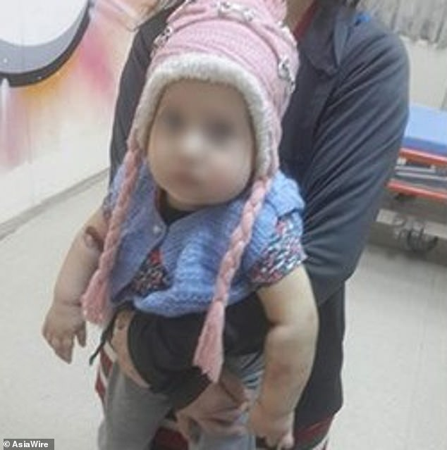 The young baby, Eylul Miray, was taken to the doctor by her father after she started bleeding from her ears and belly button. When her condition didn't improve, she was transferred to Istanbul University Medical Faculty Hospital